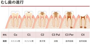 dental-caries-classification-800x398